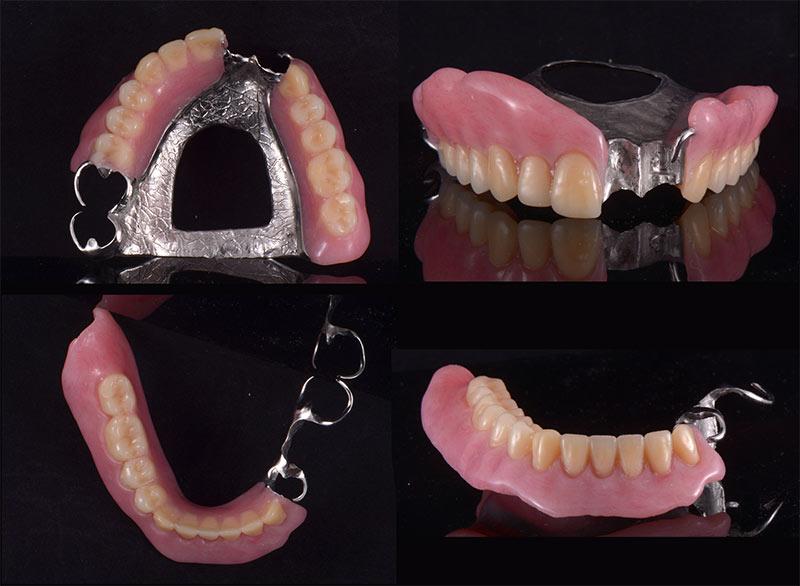 上下局部活動假牙 - 新竹光明牙醫