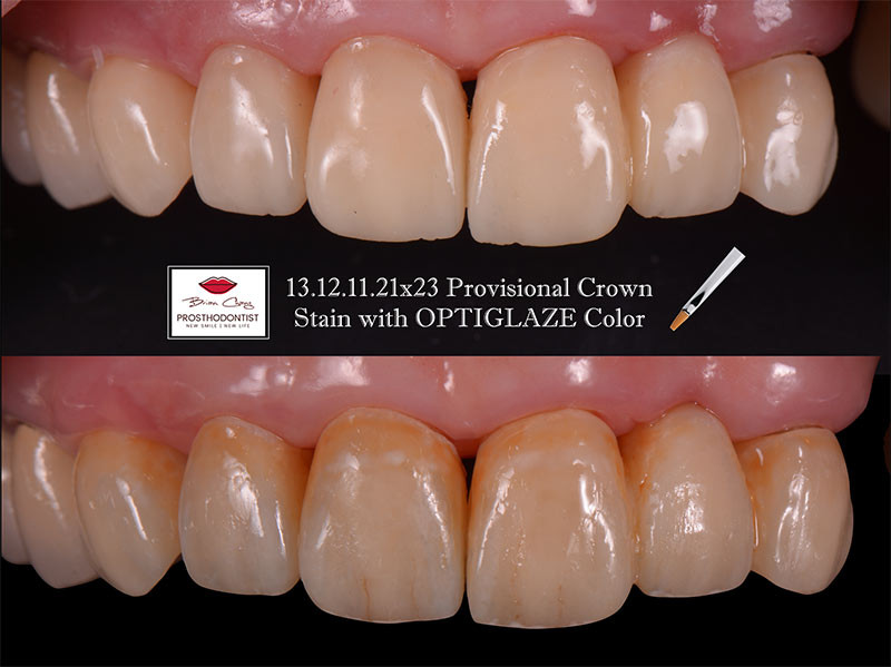 前牙仿真臨時假牙製作 – 案例分享