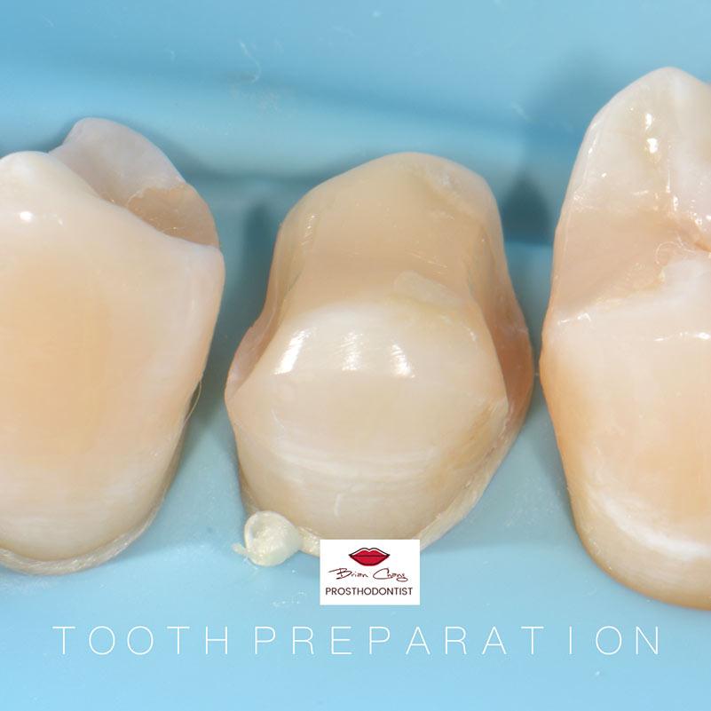 陶瓷嵌體 - 3D齒雕 案例分享 -新竹光明牙醫