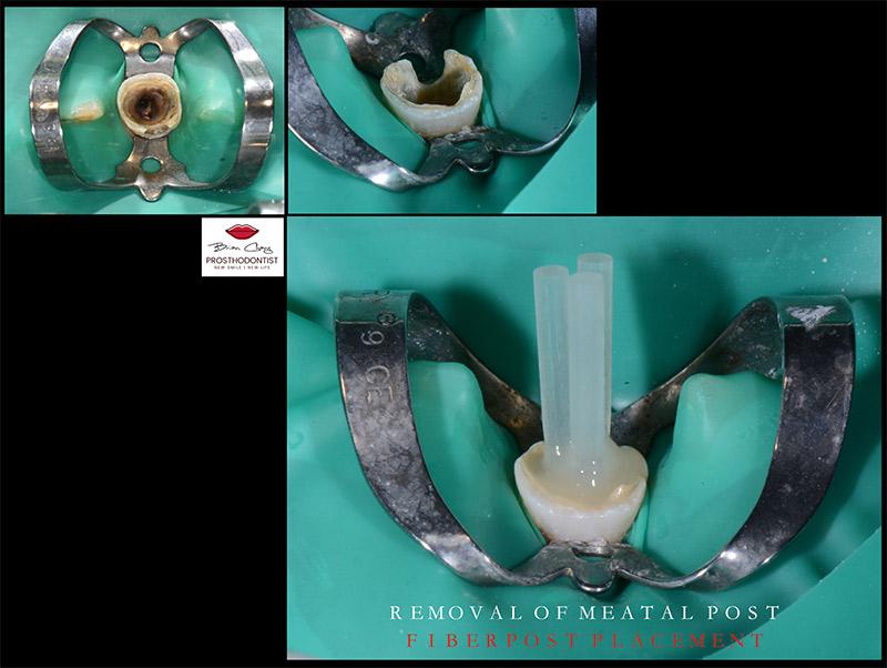 打纖維牙根柱強化結構 - 新竹光明牙醫