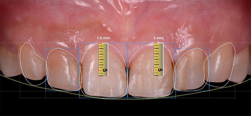 數位微笑設計_牙齦整形需切削的量 - 前牙陶瓷貼片案例分享 - 新竹光明牙醫