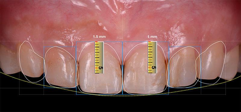 數位微笑設計_牙齦整形需切削的量-前牙DSD數位微笑設計-新竹光明牙醫