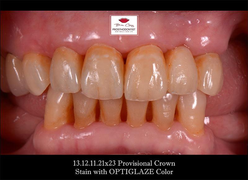 染色完成 - 新竹光明牙醫