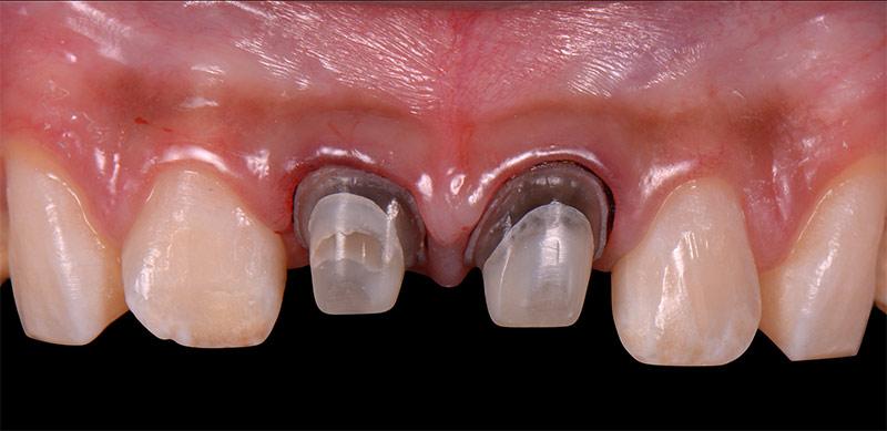 治療中 - 新竹光明牙醫全瓷冠