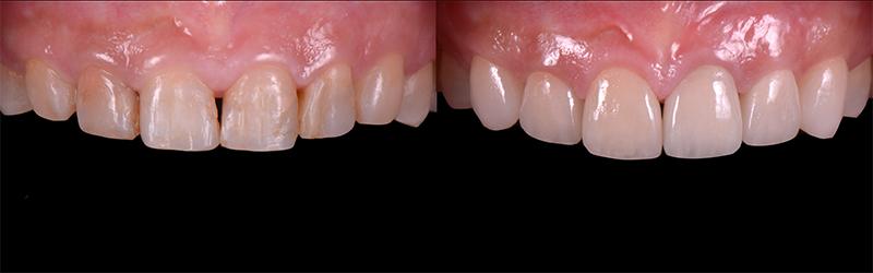 治療前後之比較-前牙DSD數位微笑設計-新竹光明牙醫