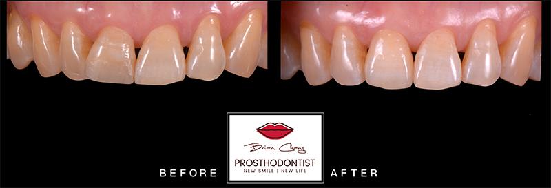 治療前後比較 - 新竹光明牙醫