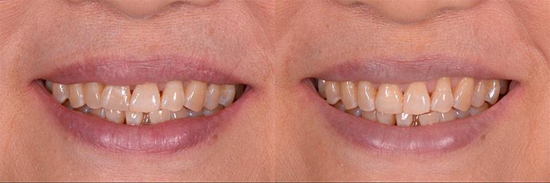 治療前後比較2 - 新竹光明牙醫