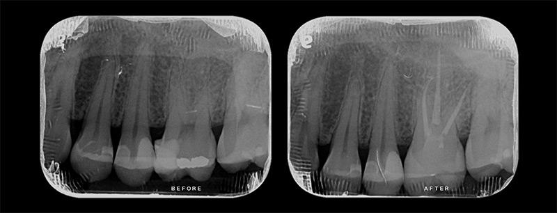 治療前後x光片 - 陶瓷嵌體:3D齒雕新竹光明牙醫案例分享