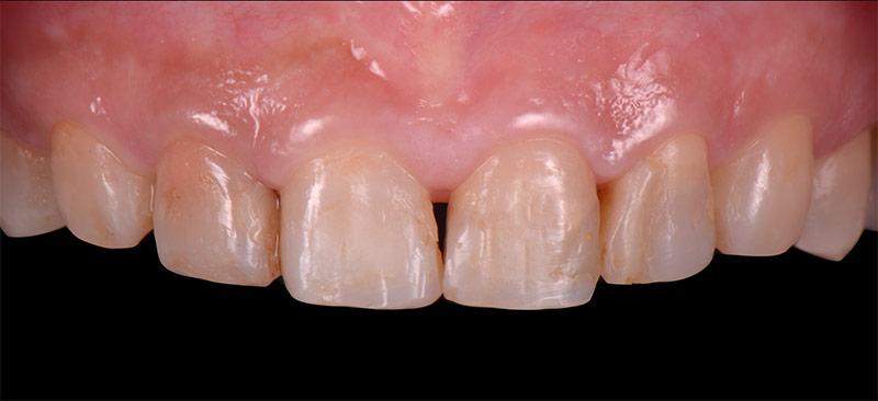 治療前 - 前牙陶瓷貼片案例分享 - 新竹光明牙醫