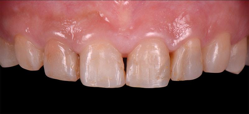治療前-前牙DSD數位微笑設計-新竹光明牙醫