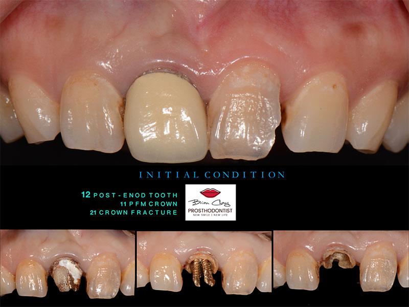 治療前_右上門牙存在著老舊不合的假牙_左上門牙斷裂 - 新竹光明牙醫