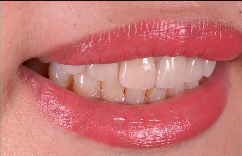 治療後的笑容_仿真的全瓷冠及貼片-前牙DSD數位微笑設計-新竹光明牙醫