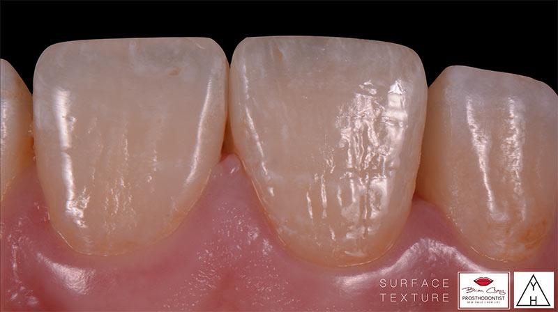 治療後 - 前牙陶瓷貼片 - 新竹光明牙醫