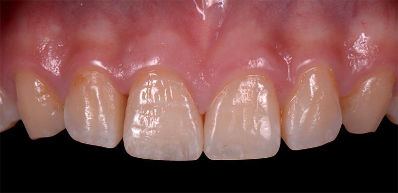 治療後1 - 前牙陶瓷貼片 - 新竹光明牙醫