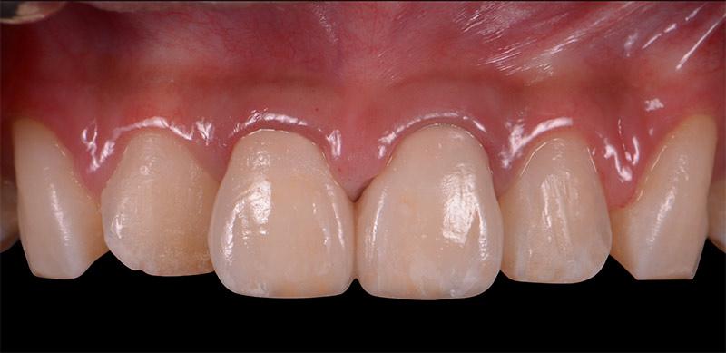前牙全瓷冠 – 案例分享