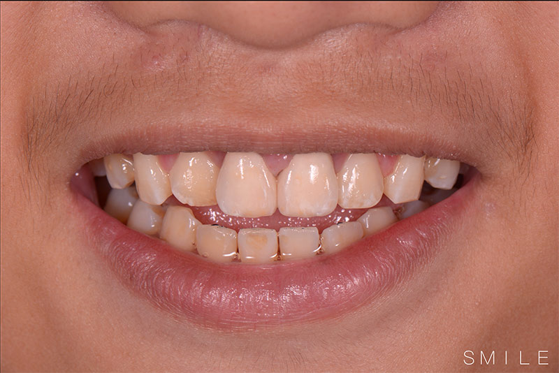 治療後 - 新竹光明牙醫全瓷冠