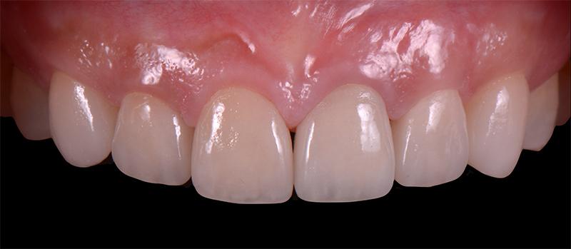貼片及全瓷冠的製作 - 前牙陶瓷貼片案例分享 - 新竹光明牙醫