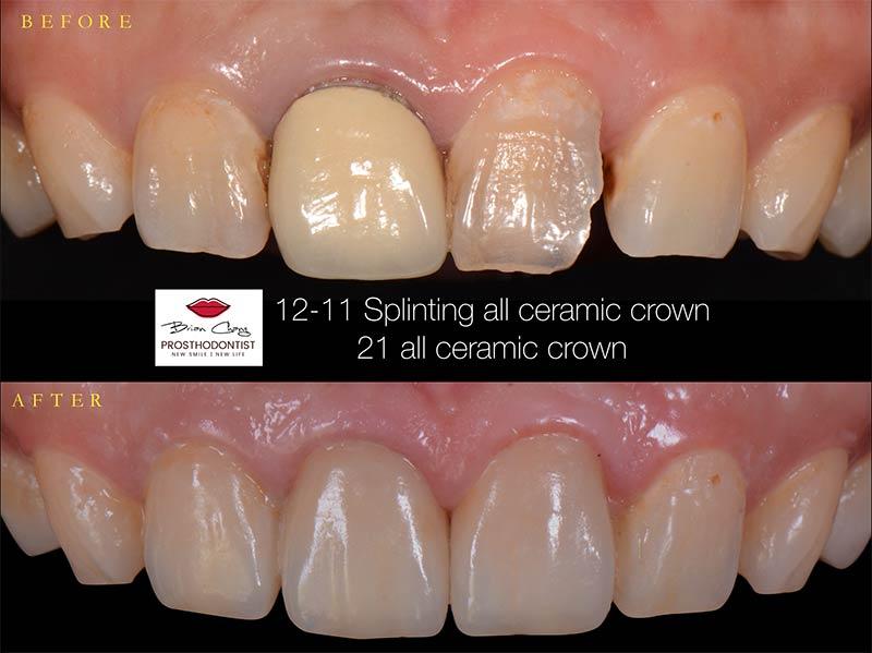 透過全瓷冠重建前牙美觀 - 新竹光明牙醫