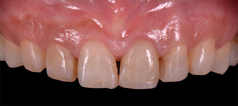 進行牙齦整形術之後-前牙DSD數位微笑設計-新竹光明牙醫