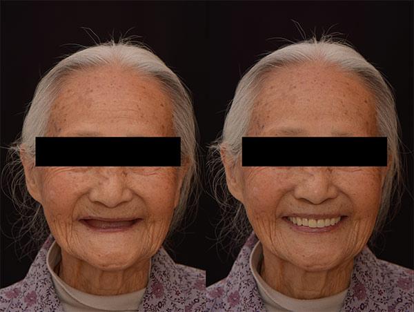 配戴假牙前後比較1 - 新竹光明牙醫