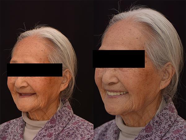 配戴假牙前後比較2 - 新竹光明牙醫