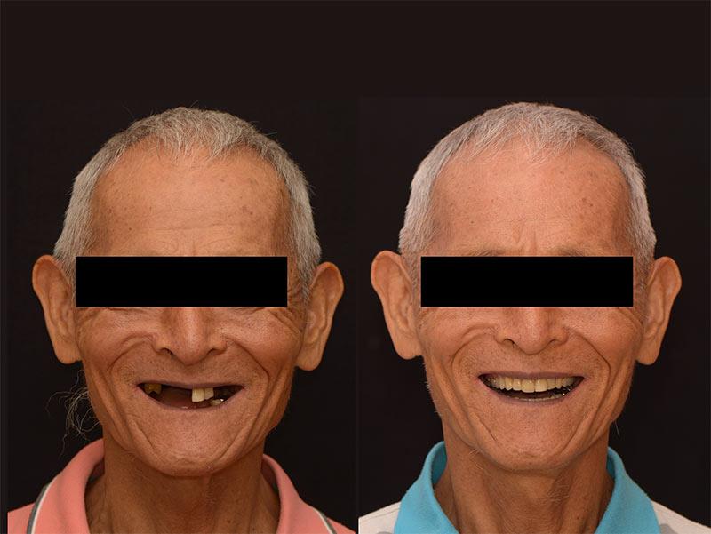 配戴局部活動假牙前後比較 - 新竹光明牙醫