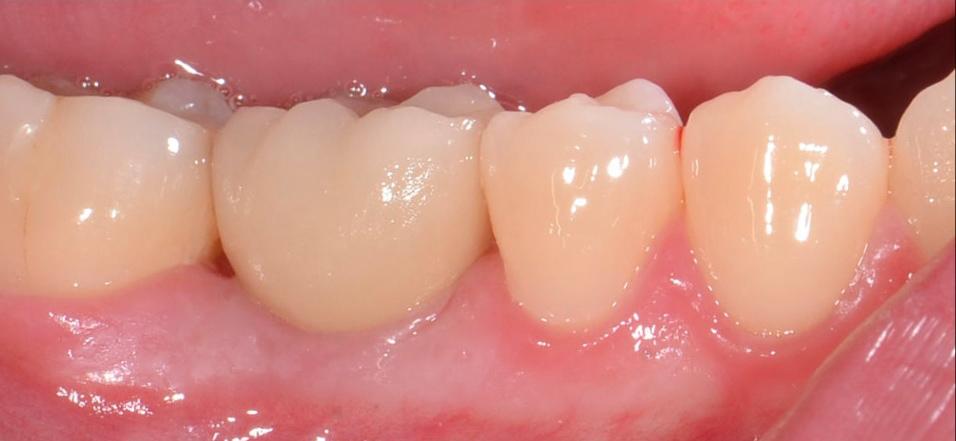 植牙案例分享
