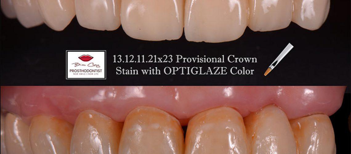 仿真臨時假染色牙前後比較 - 新竹光明牙醫