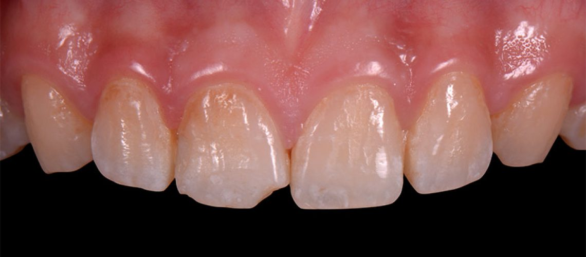 治療前 - 前牙全瓷冠真實案例分享 - 新竹光明牙醫