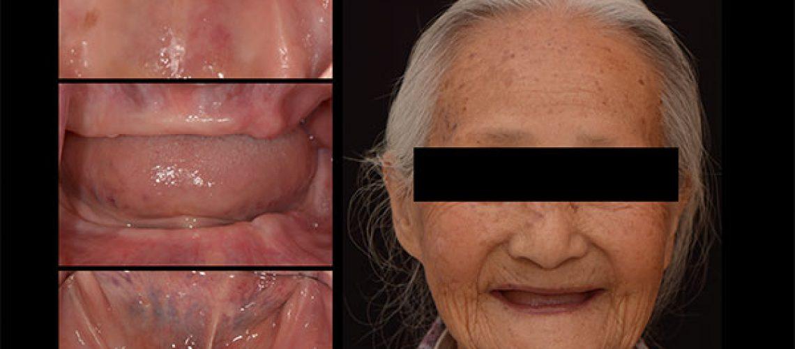 治療前 - 新竹光明牙醫