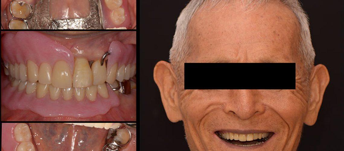 上下局部活動假牙治療後 - 新竹光明牙醫