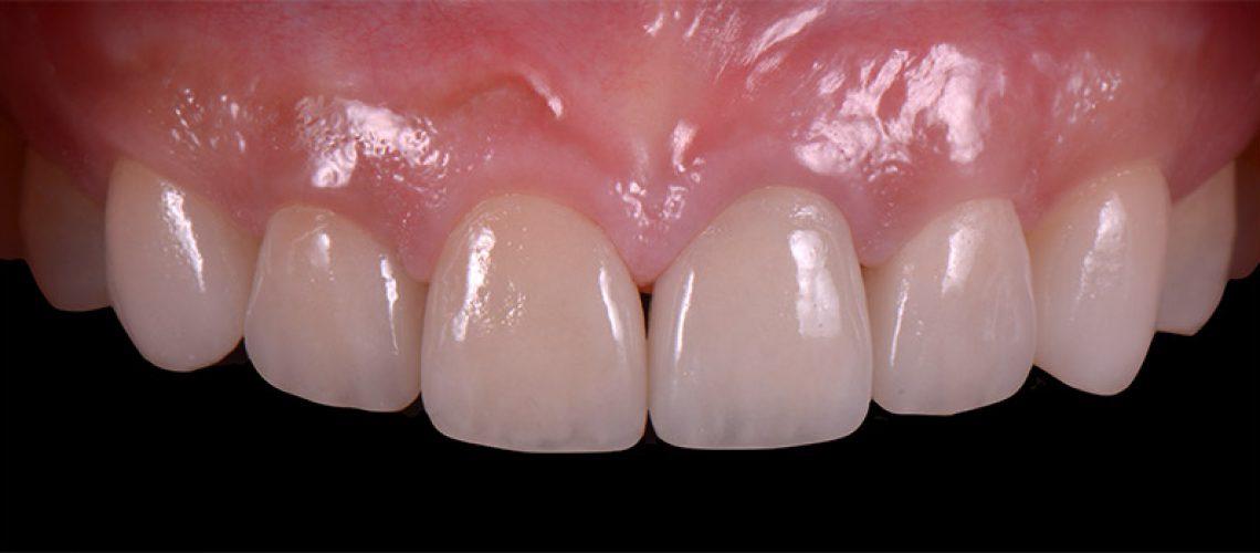 貼片及全瓷冠的製作-前牙DSD數位微笑設計-新竹光明牙醫