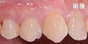 wen-case-24-2-牙根覆蓋